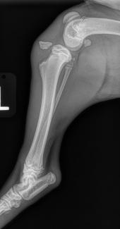 Tibial Tuberosity avulsion fracture