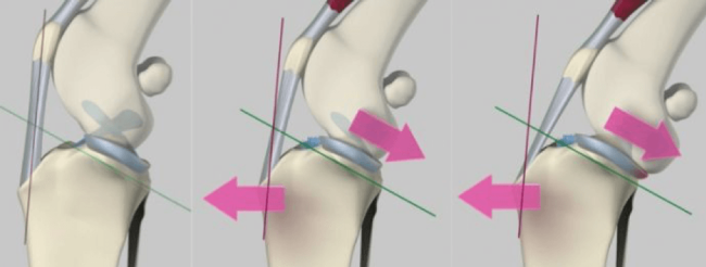 Mechanics of cruciate ligament disease